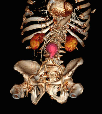 CT scan image showing an abdominal aortic aneurysm