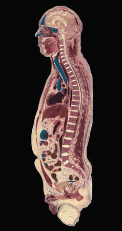 Visible man,sagittal view