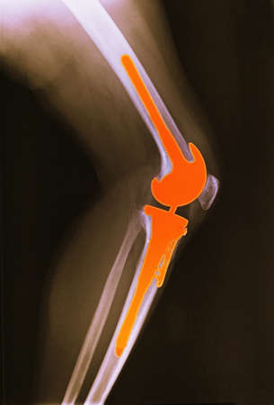x-ray of leg with total knee replacement LANG_EVOIMAGES