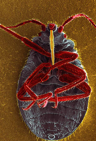 enlarged: SEM of a bedbug,Cimex lectularius