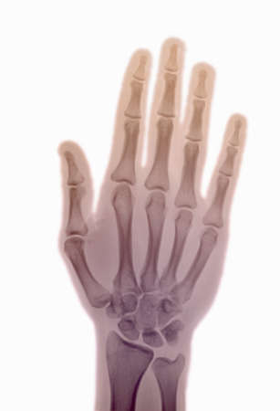 enhanced healthy: normal x-ray of the hand