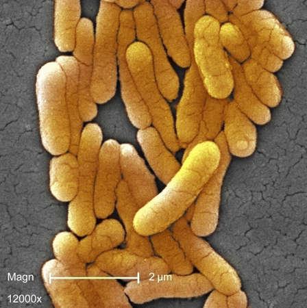salmonella: SEM of Salmonella typhimurium bacteria