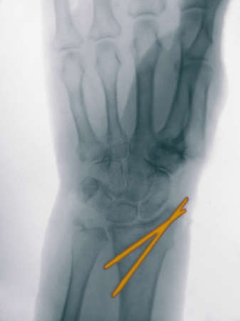enhanced healthy: x-ray of a radius fracture stabilized with pins LANG_EVOIMAGES