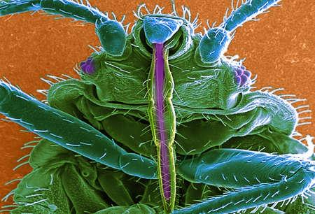 revulsion: SEM of bedbug (Cimex lectularius)
