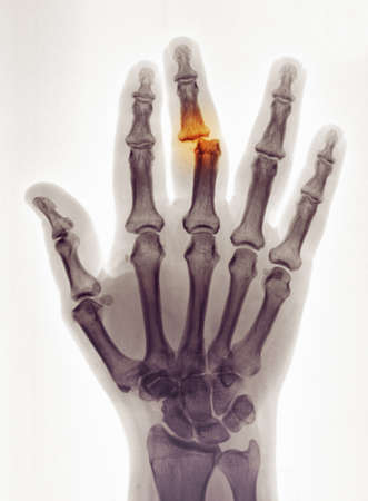 dislocation: hand x-ray showing a dislocation LANG_EVOIMAGES