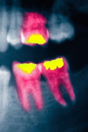 filings: panorex x-ray to show dental filings