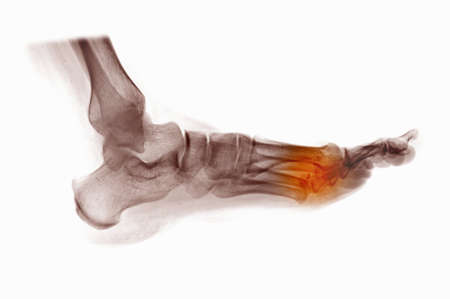 x-ray of foot showing fractured metatarsals