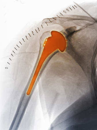 recuperating: shoulder replacement x-ray of a 51 year old woman