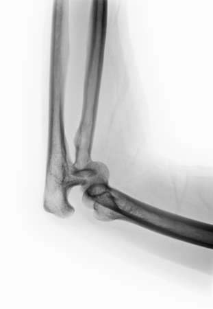 dislocation: x-ray of an elbow dislocation LANG_EVOIMAGES