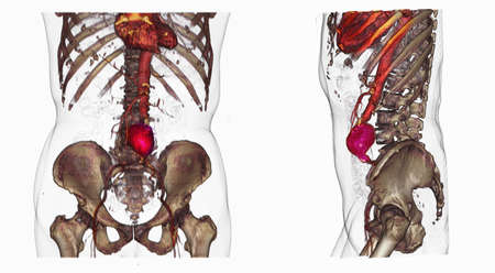 Two CT scan images of an abdominal aortic aneurysm LANG_EVOIMAGES