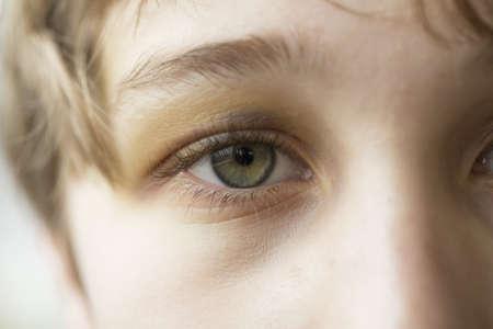recuperating: Close up of boys eye