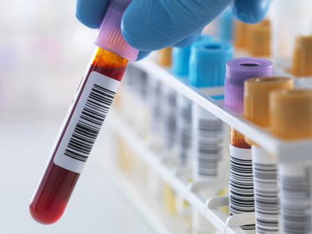 A blood sample being held with a row of human samples for analytical testing including blood, urine, chemistry, proteins, anticoagulants and HIV in lab LANG_EVOIMAGES