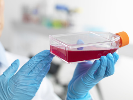 specimen testing: Hands of cell biologist holding a flask containing stem cells, cultivated in red growth medium, to investigate disease