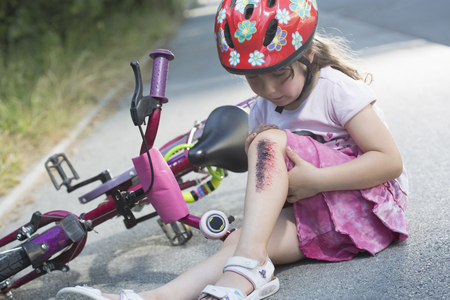 Young girl with injured leg sitting on road with bicycle LANG_EVOIMAGES