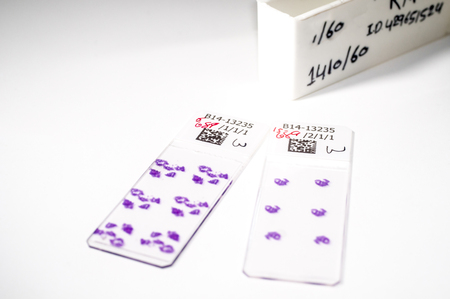 Gastrointestinal biopsy slides -  stained tissue samples taken from a womans gastrointestinal tract. Slides will be examined under a microscope for abnormalities  indicating Crohns or infection