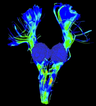 Cortical spinal tract, major bundle in the motor system, and thalamus in blue surface, in a Parkinsons brain