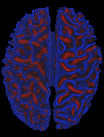 Human brain cortical surface and folding. Valleys of the folds are in red and ridgescrests are in blue LANG_EVOIMAGES