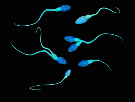 Illustration of abnormalities and deformities of human sperm cells LANG_EVOIMAGES