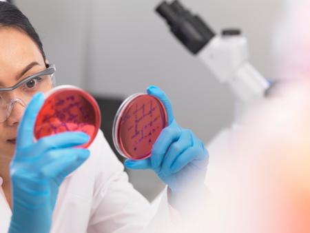 Científico examina culturas microbiológicas en una placa de Petri