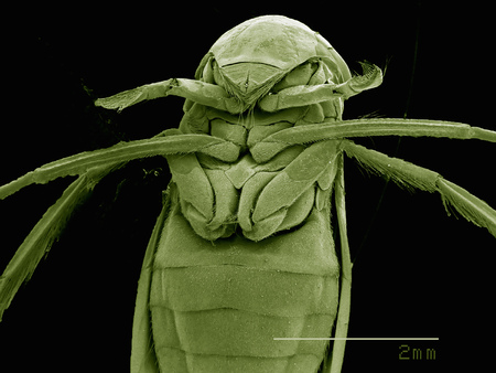 Scanning electron micrograph of the head of a female backswimmer (hemiptera: corixidae)
