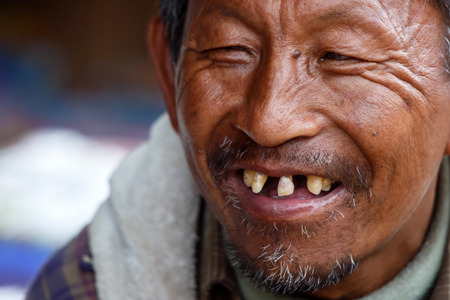CHIN STATE, MYANMAR - JUNE 18 2015: Local weathered faced man with missing teeth in the recently opened for tourists Chin State Mountainous Region, Myanmar (Burma)