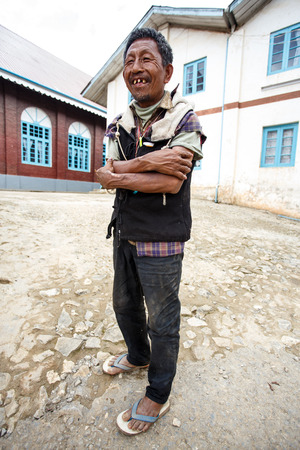 bad teeth: CHIN STATE, MYANMAR - JUNE 18 2015: Local man with bad teeth in the recently opened for tourists Chin State Mountainous Region, Myanmar (Burma)