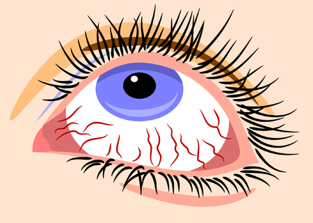 human eye close up: sick sore eyes