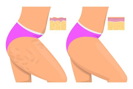 Cellulite on the hips isolated. Before and after, female body. Healthy skin and weight loss concept.