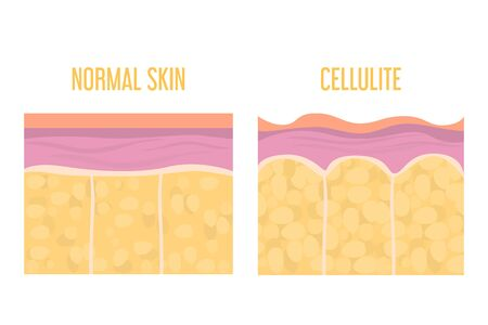 Cellulite skin and healthy skin anatomy. Fat tissue of human body vector isolated. Epidermis and dermis texture. Medical illustration of human cellulite skin. Ilustração