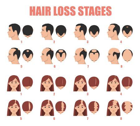 Haarausfall Stadien Vektor isoliert. Weibliche und männliche Alopezie. Satz von Glatzenbildungsprozess. Haarlose Frauen- und Mannköpfe. Vektorgrafik