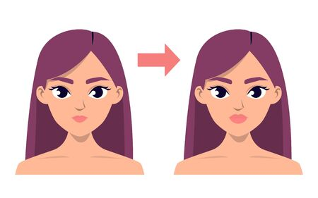Before and after lip injection vector isolated Ilustrace