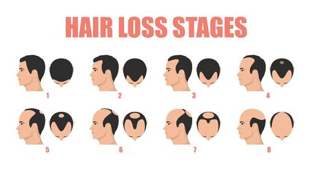 Hair loss stages vector isolated. Male alopecia 向量圖像
