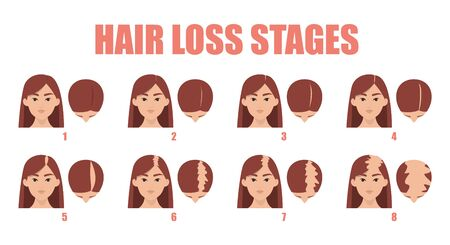 Hair loss stages vector isolated. Female alopecia. Set of balding process. Hairless woman heads front and top view.