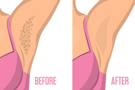 Armpit depilation before and after vector isolated. Female body, hair removal. Skin care, epilation procedure.