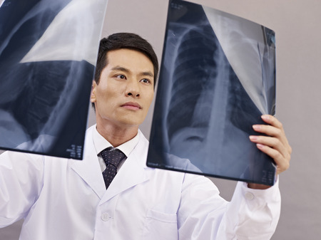 young asian doctor looking at two x-ray films. photo