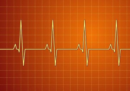 grooved: Lifeline in an electrocardiogram. Vector