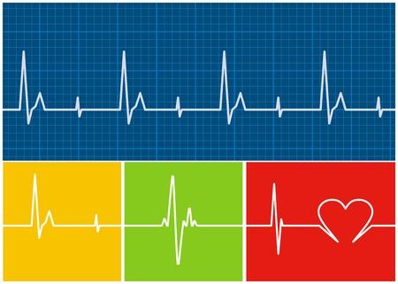 electrocardiograma: Supervivencia en un electrocardiograma. Vector  Vectores