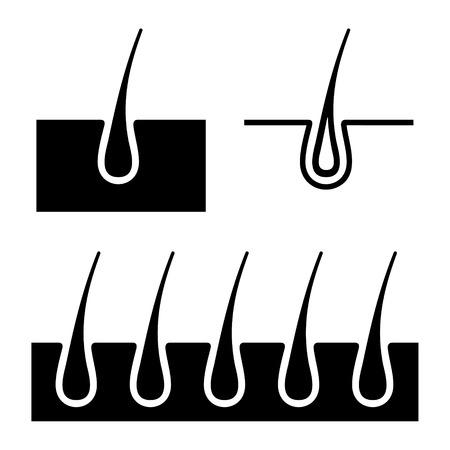 follicle: Ejemplo simple del fol�culo del pelo set de iconos de Vector