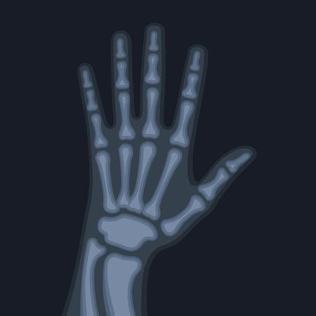 radiograph: X Rays Style Human Hand. Vector illustration