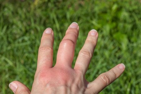 right hand with a swollen large middle finger after a bee bite on a green background, bigger due to allergy reaction after a wasp sting, red sensation on palm, finger wounded, skin irritation