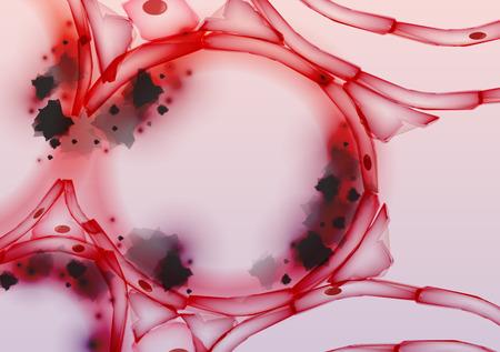 alveolos: Los alv�olos en los pulmones inflamados de tejido Loncha, Secci�n transversal, alquitr�n del humo - Ilustraci�n