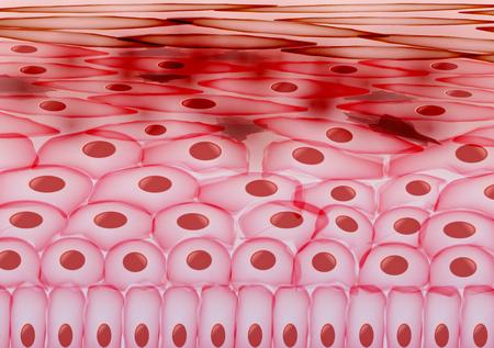 leukocyte: Skin Cells, Eczema, Inflamed Skin Layers - Illustration