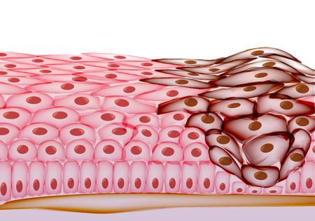 Growing Tumor, Tissue Section - Illustration