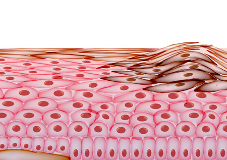 skin cancer: Melanoma in Layers of the Human skin, Cancer -  Illustration Illustration
