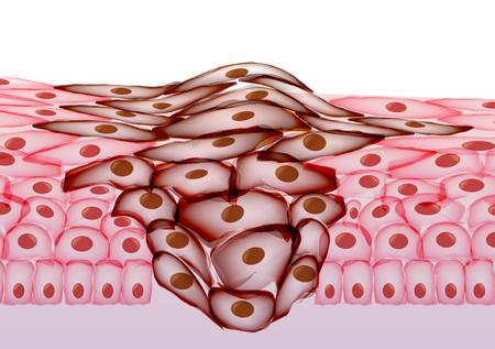 成長している腫瘍、組織切片の図