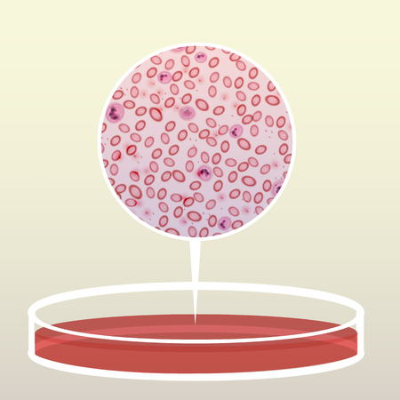 Petri Dish with Blood, Magnified Area  - Vector Illustration