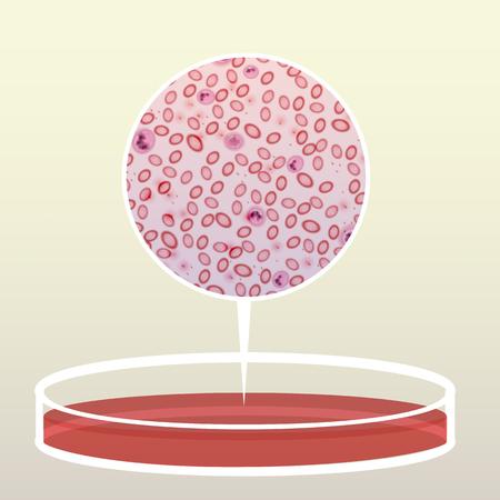 Petri Schotel Met Bloed, Vergroot Gebied - Vector Illustratie Stock Illustratie