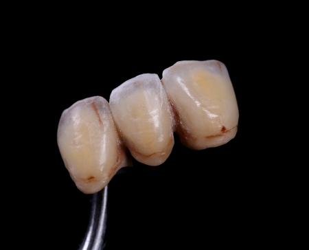 laboratorio dental: terminados coronas delanteras de cer�mica, un fondo negro Foto de archivo