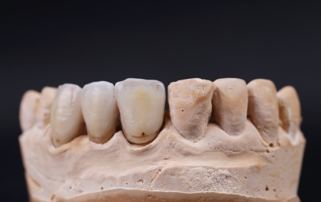 plaster mould: Close up of dental prothetic jaw. Technical shots. Black background.