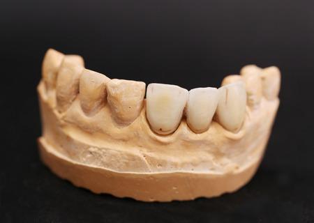 prothetic: Dental Prothetic laboratory. Technical shots. Black background.